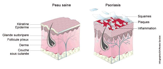 psoriasis_graph